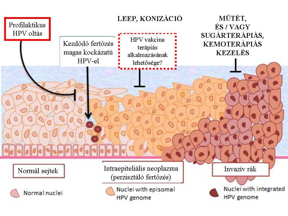 hpv rákos sejtek genitális szemölcsök jelennek meg
