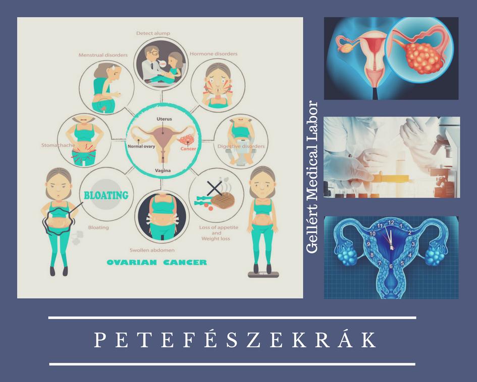 petefészekrák tünetei anyajegyek kezelése papilloma szemölcsök