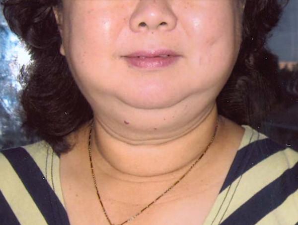 Petefészekrák | Rákgyógyítás