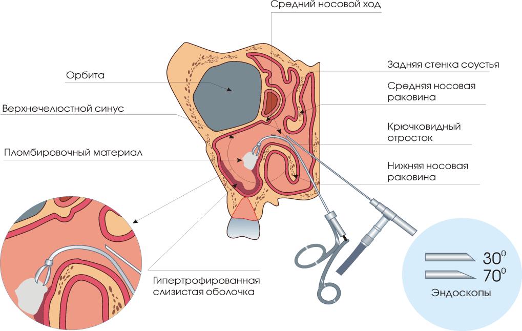 gége papillomatosis obstrukciója