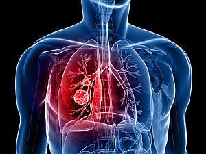 A tüdőrák tünetei - mik a legáltalánosabb panaszok?
