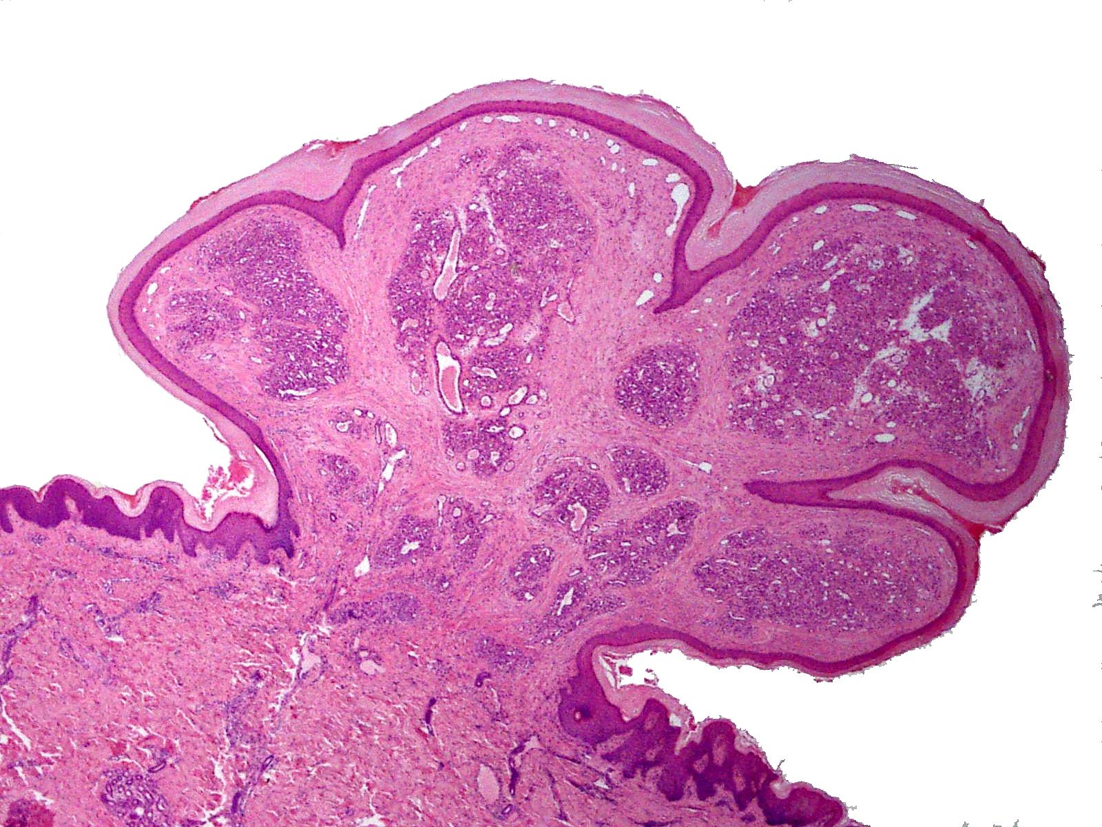 papilloma granuloma
