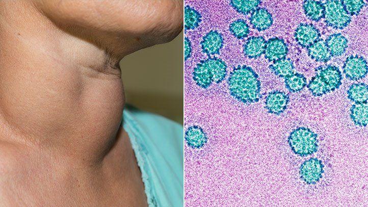 conto nemathelminthes parazita pada manusia rák és vitaminok