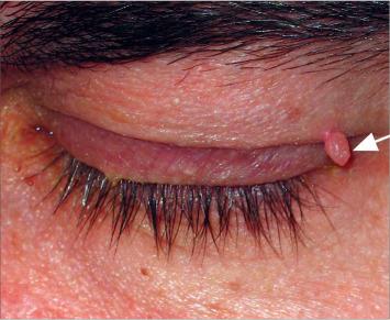 kezelik a papilloma vírust? papillomavírus kenőcs a torokhoz