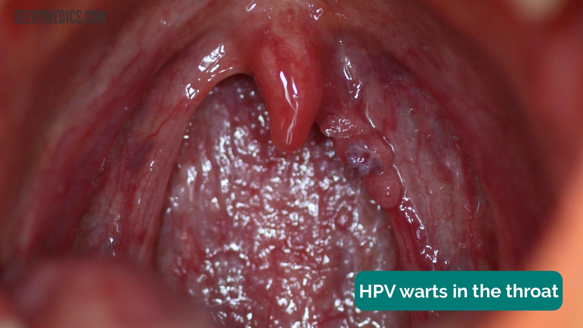 papilloma uvula okozza