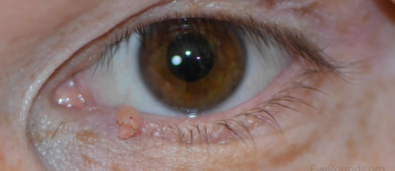 Heg papilloma után, HPV (Humán Papilloma Vírus) fertőzés