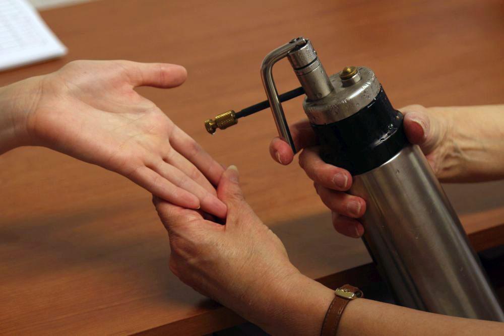 a belga condyloma eltávolítása A hpv nem okoz rákot