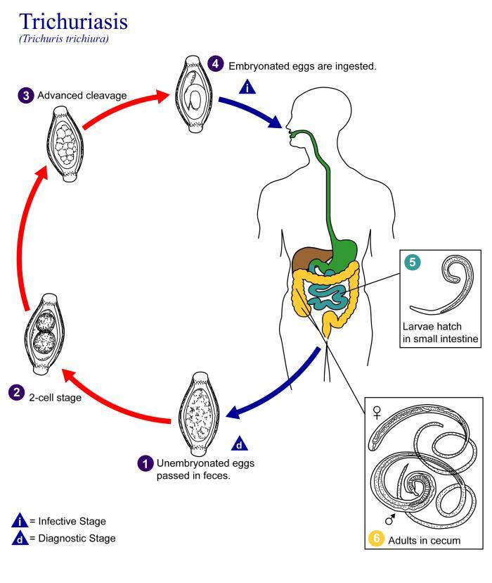 Helmint parazita fertőzések, Helminth Charger