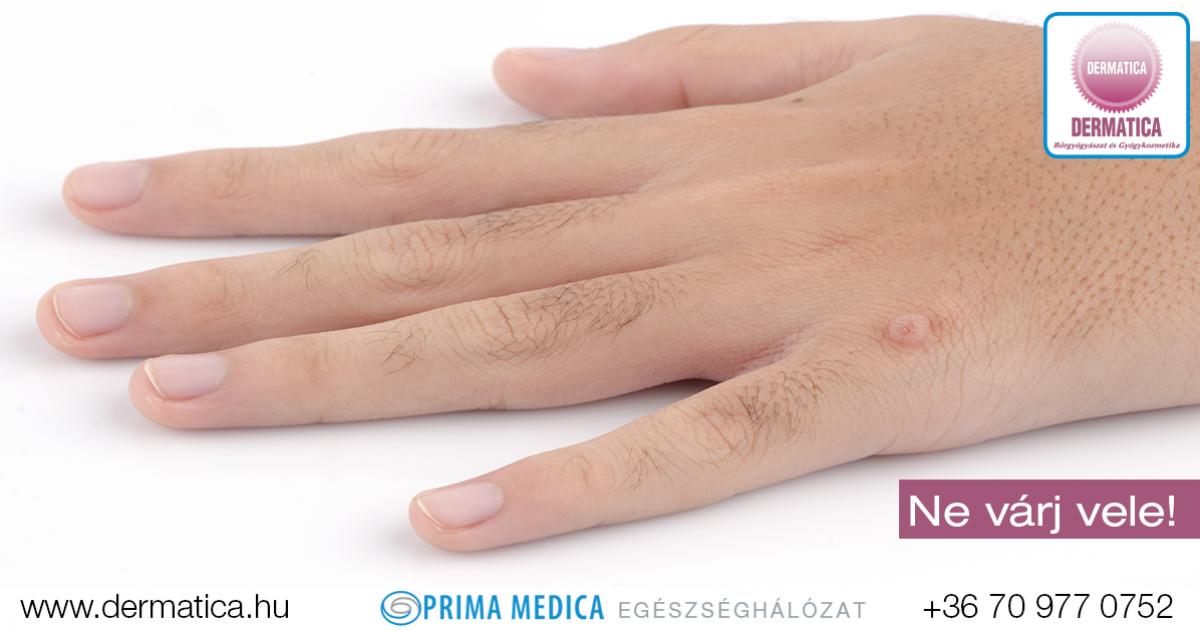 papillomavírus elleni vakcina fájdalom orrüregi rák