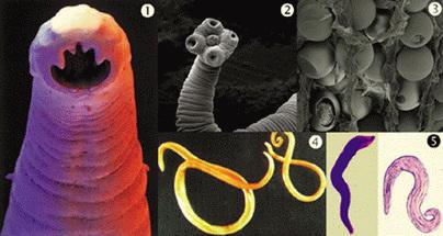 a podolszk genitális szemölcsök eltávolítása papilloma gyógymód