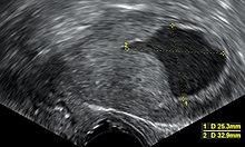 endometrium rák keytruda
