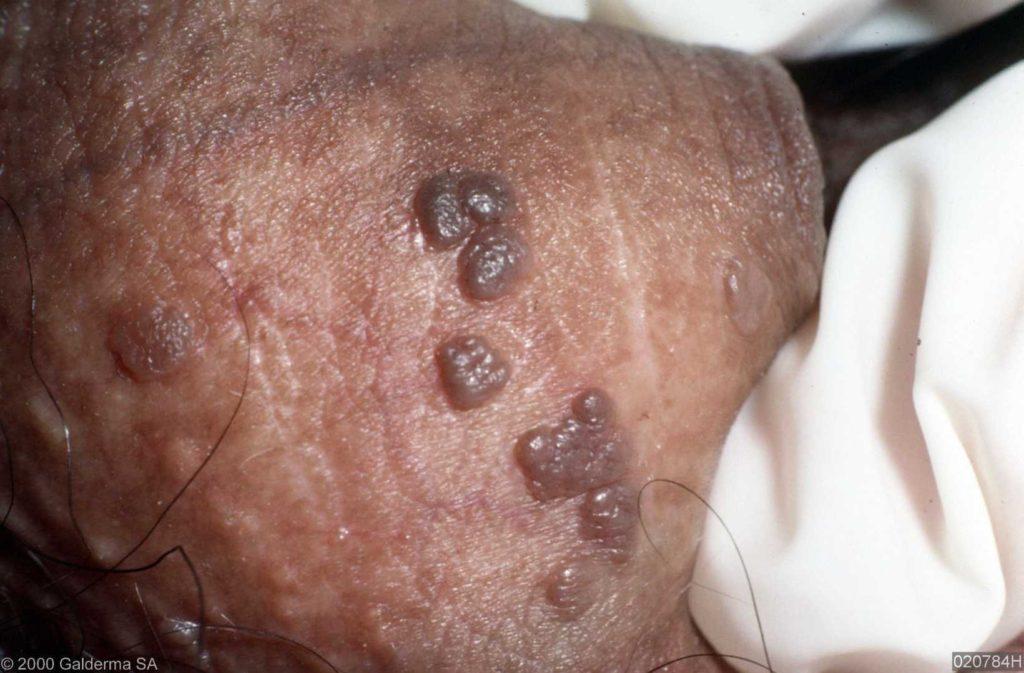 papillomavírus mannen hogyan lehet gyógyítani a talpi szemölcsöt
