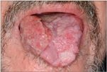 papillomavírus torok tünetei