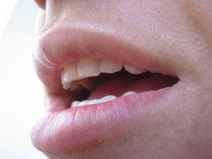 A humán papillomavírus és a szájüregi daganatok | moveinstudio.hu