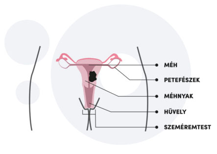 Szexuális úton terjedő betegségek férfiaknál