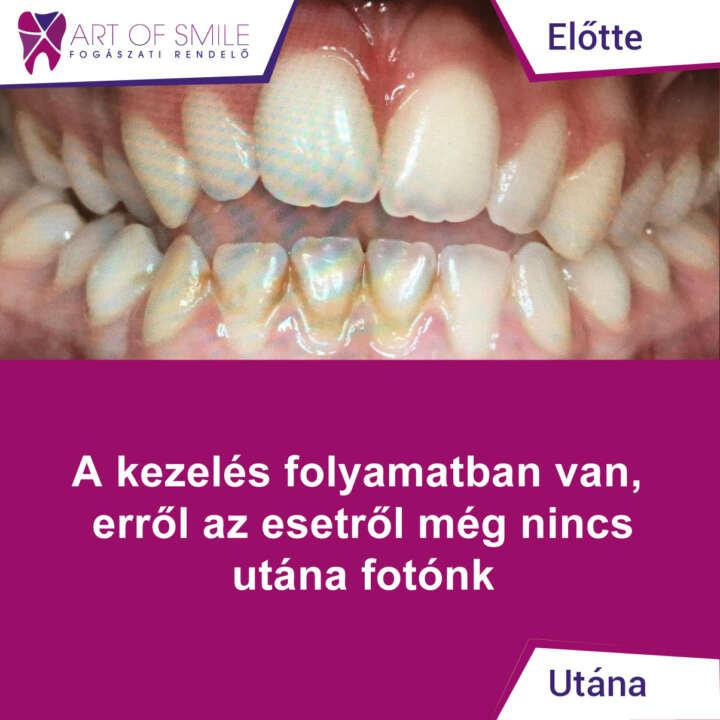 hpv száj, hogyan kell kezelni hatékony gyógyszerek a giardiasis ellen