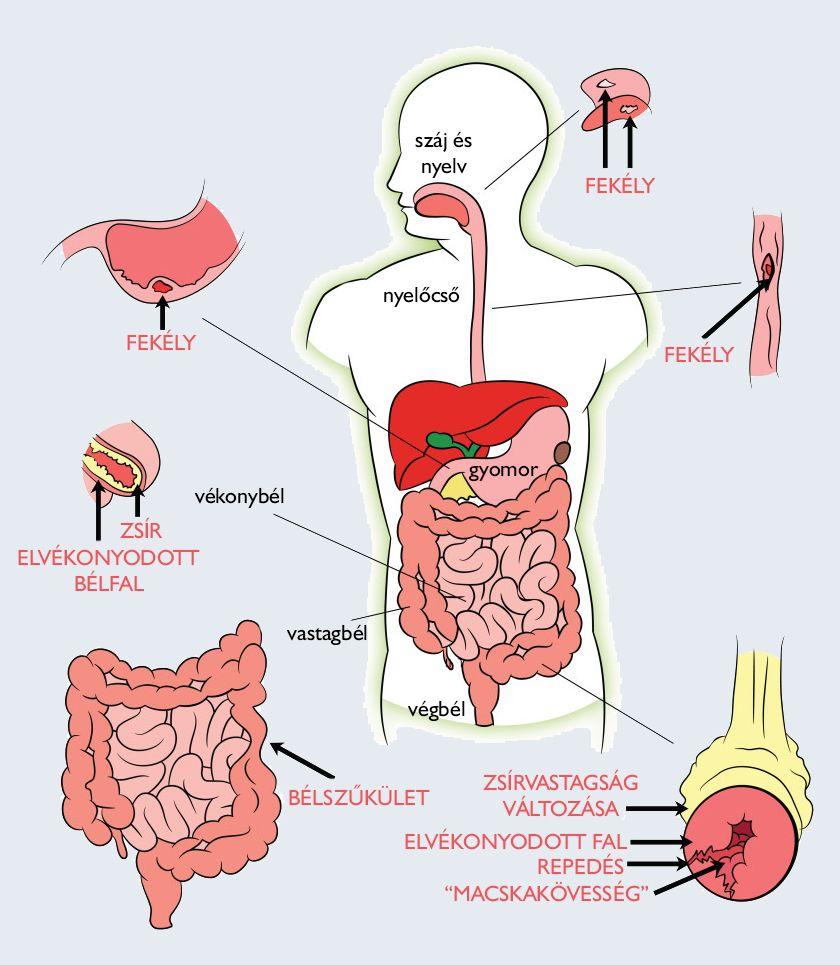a test reakciója a férgek kezelésére