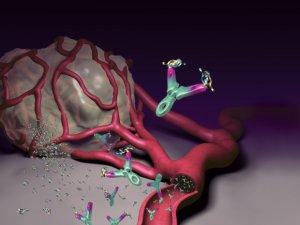 a papilloma rák kezelése hpv pozitív okok