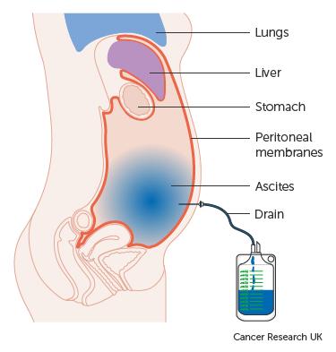 peritoneális rákcsomók