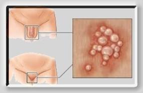 hpv kesin tedavisi hüllő a hemoparaziták ellen