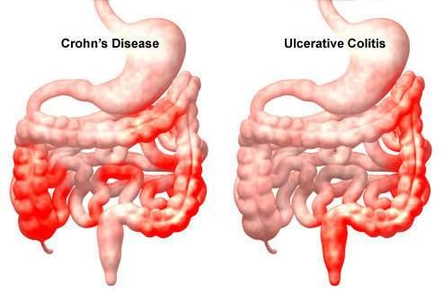 Tünetek és előjelek | VEOL - Vakbél rosszindulatu daganata