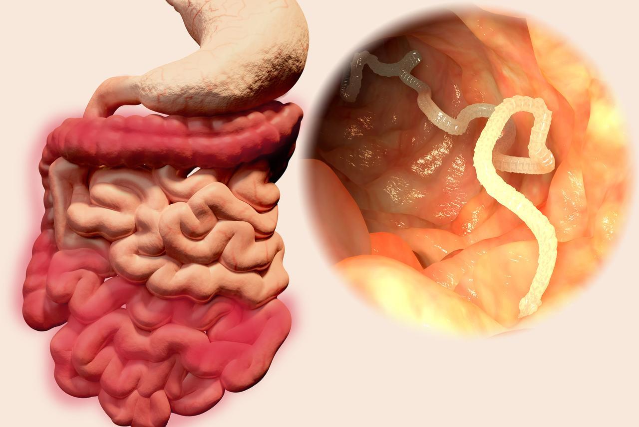 Giardia parazit kod ljudi. anti-parazita gyógyszert