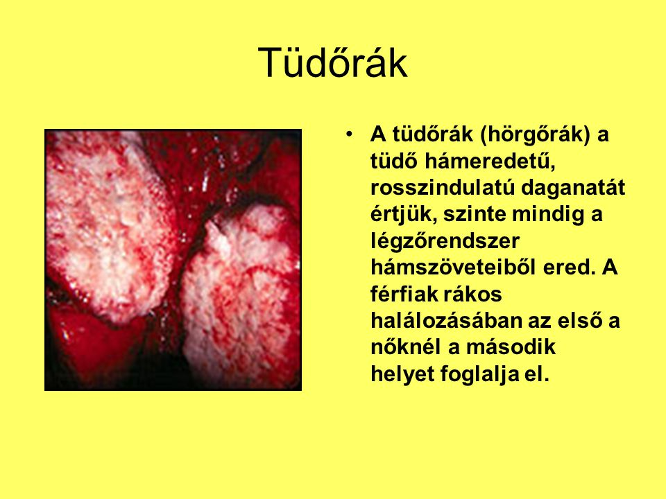 helmint tabletta vélemények hasnyálmirigyrák diagnózisa