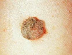 ductalis papilloma cie 10 gyógymód a papilloma vírus ellen
