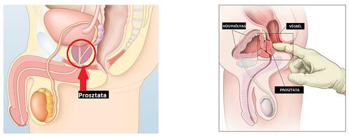 Dr. Diag - Adenomatosus polypusok vastagbélben