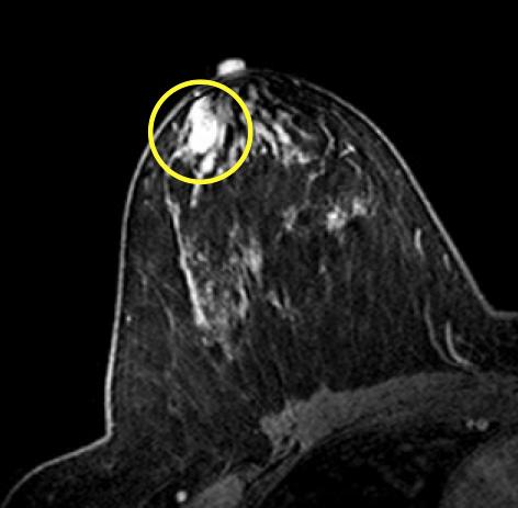 intraductalis papillomatosis mri