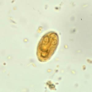 Giardia fertőzés, a pápaszemes szörnyeteg