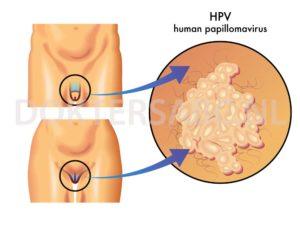 hpv vírus maar geen wratten hogy néz ki a condyloma a nőknél