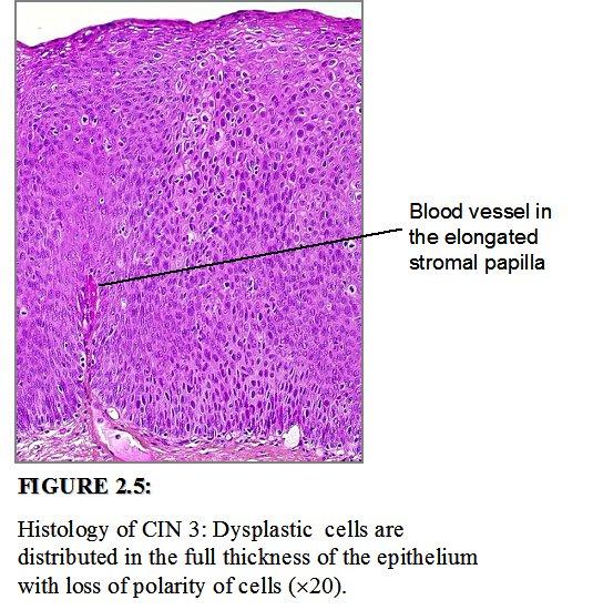 papillomavírus cin 3