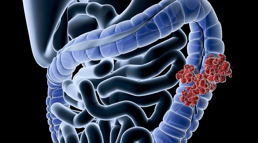Milyen célzott daganatterápiában részesülhet ma egy magyar rákbeteg? - Mutáció.hu