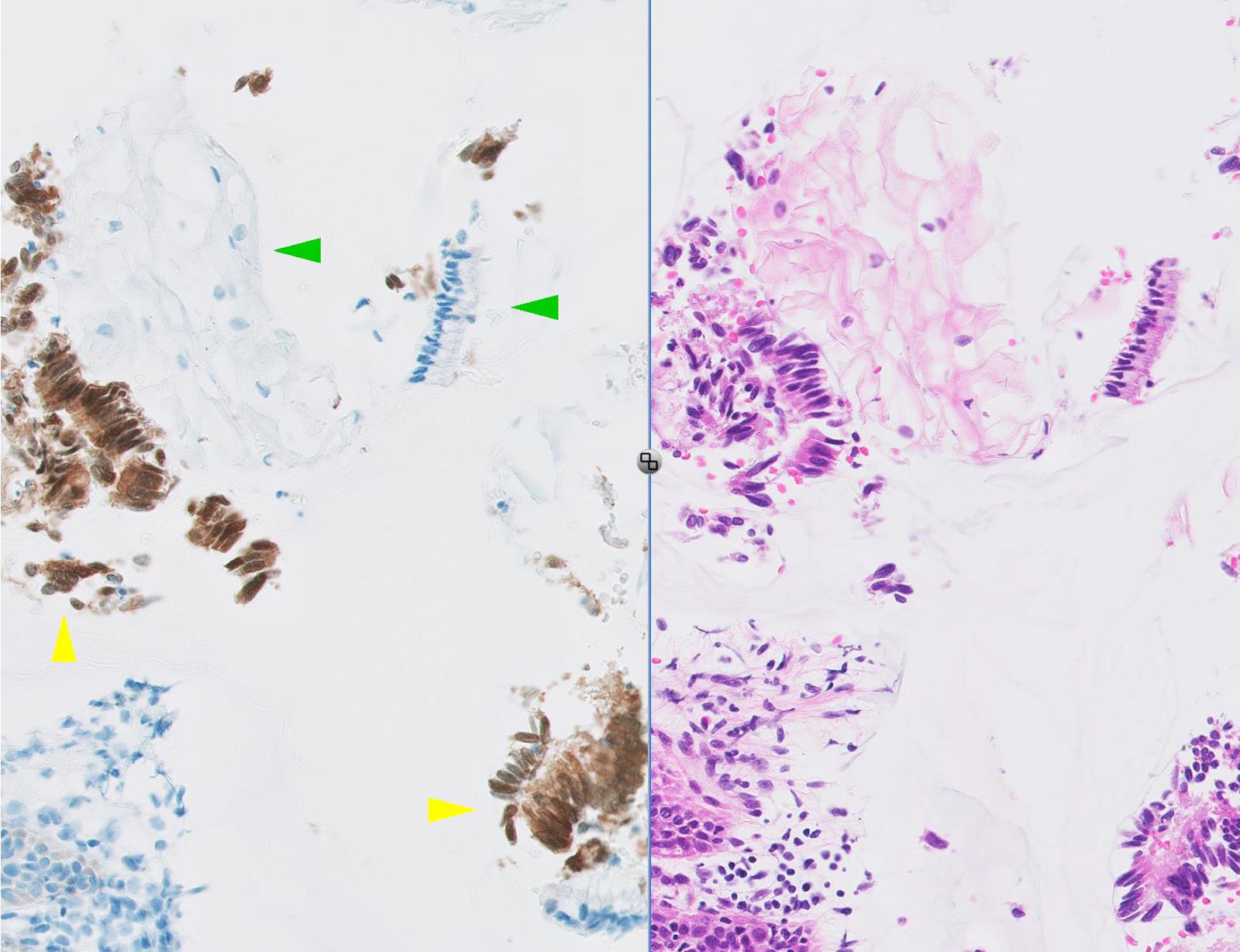 pikkelyes papilloma nyelőcső p16 májtisztító viteldíjak