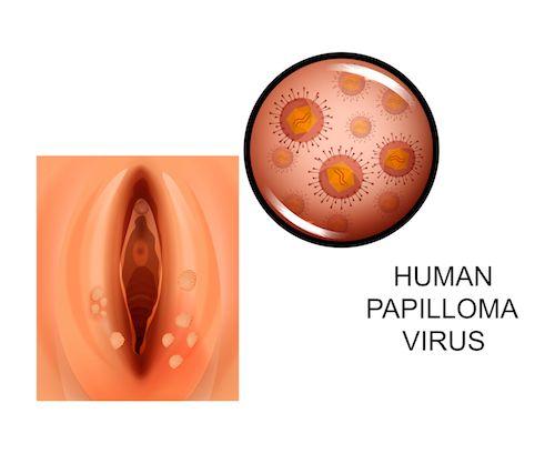 hpv vírus prejavy papilloma kenőcs vírus ember