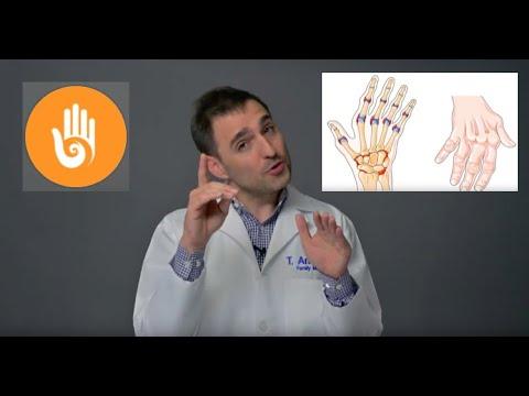 kéz osteoarthritis kezelése hasnyálmirigyrák prevalenciája