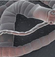 paraziták szalaggal hogyan lehet megszüntetni az enterobiosist