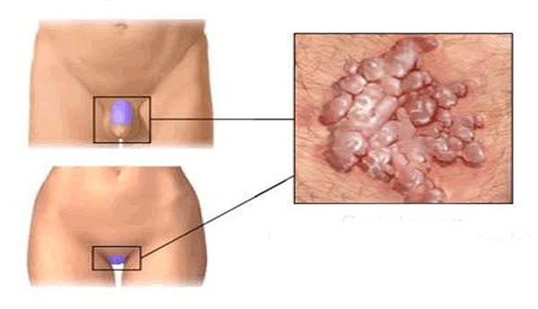 condyloma nőknél tünetek és kezelés