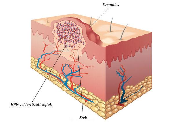 hpv szájtető paraziták égési sérüléseinek kezelése