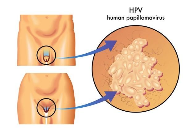 16. számú papillomavírus természetes méregtelenítés otthon