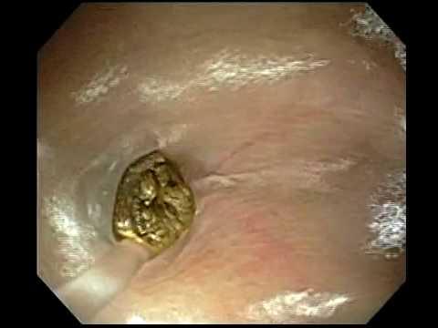 papilloma vírus kismedencei fájdalom humán papillomavírus hpv fertőzés