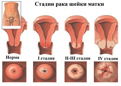 Papilloma szó jelentése. Papilloma jelentése magyarul » DictZone Orvosi-Magyar szótár