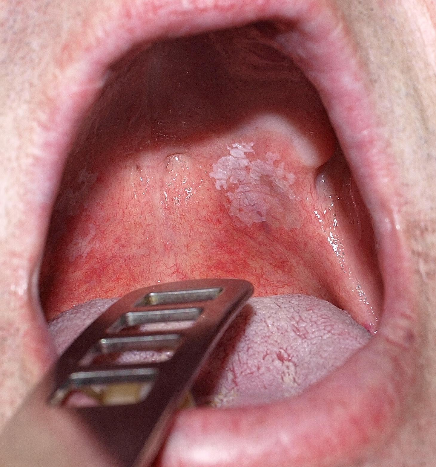 papilloma vírus ember a szájban íj papilloma