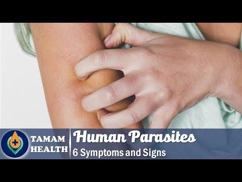 Parazita férgek pinworm Pinworm parazita előkészítése