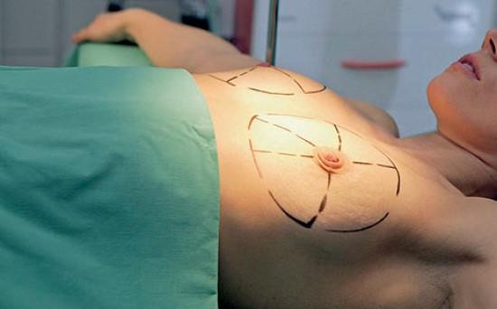 emlőrák műtét