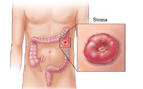 hashártya rák markerek hpv típusú 16 genitális szemölcsök