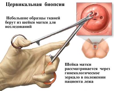 férgek kezelése kerekféregben szenvedő gyermekeknél