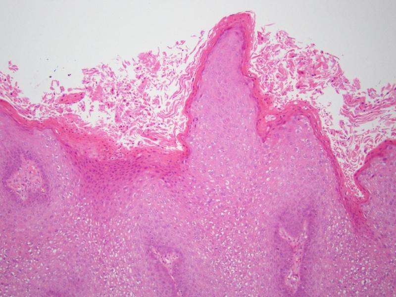 Milyen betegségeket okozhat a HPV? - Szülész-Nőgyógyász Budapest szívében