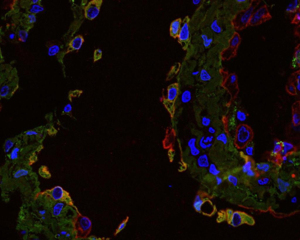 papillomavírus szövettana